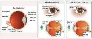 Biến chứng về mắt thường gặp ở bệnh nhân đái tháo đường